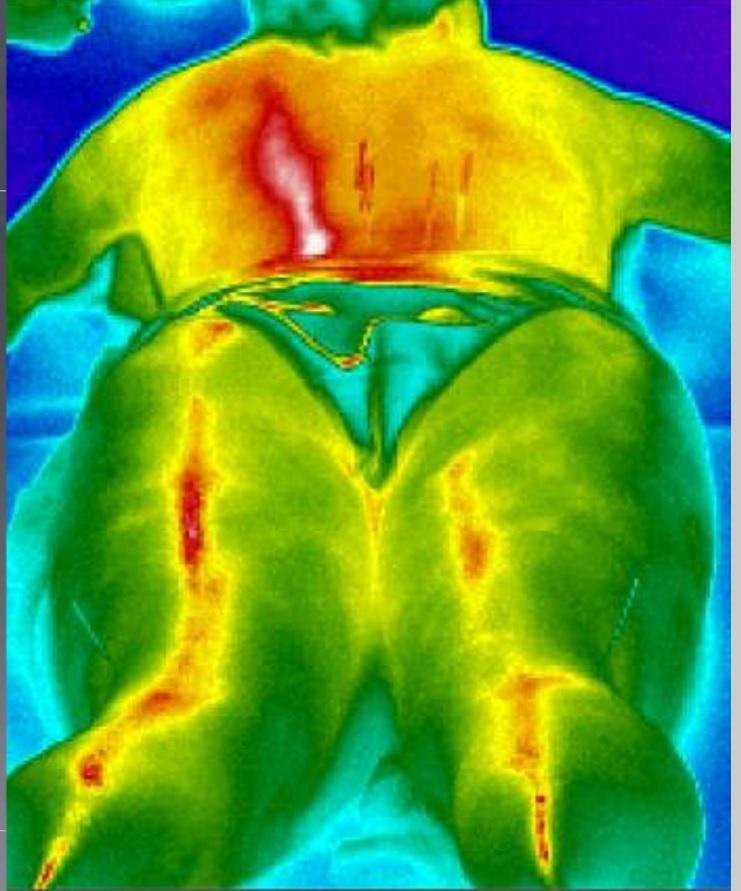 меридиан мочевого пузыря
